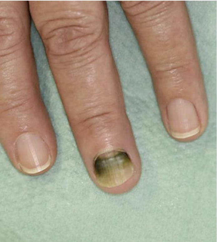 Treatment Of Pseudomonas Nail Infection image gallery