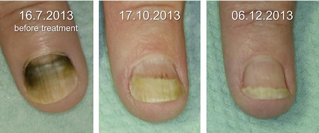 Figure 2 from Green Nail Syndrome (Pseudomonas aeruginosa Nail ...
