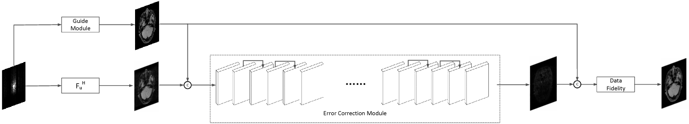Figure 1 for A Deep Error Correction Network for Compressed Sensing MRI