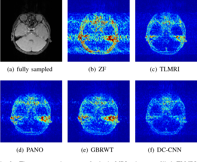 Figure 2 for A Deep Error Correction Network for Compressed Sensing MRI