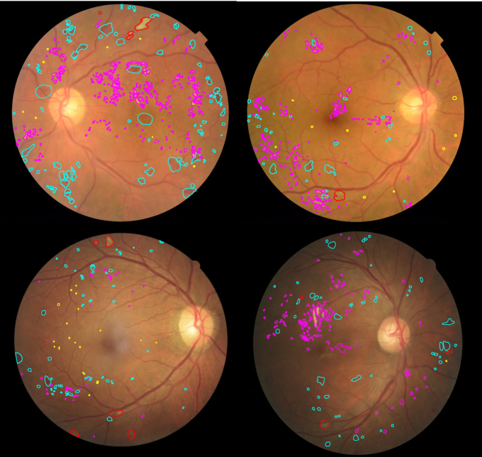 Figure 3 for DR-GAN: Conditional Generative Adversarial Network for Fine-Grained Lesion Synthesis on Diabetic Retinopathy Images
