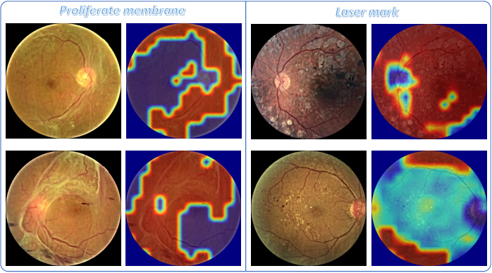 Figure 4 for DR-GAN: Conditional Generative Adversarial Network for Fine-Grained Lesion Synthesis on Diabetic Retinopathy Images