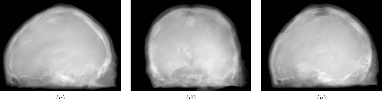 Figure 3 for Projection image-to-image translation in hybrid X-ray/MR imaging