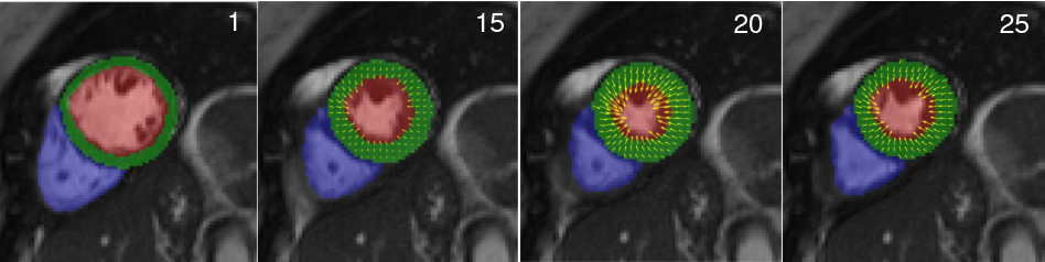 Figure 4 for Joint Learning of Motion Estimation and Segmentation for Cardiac MR Image Sequences