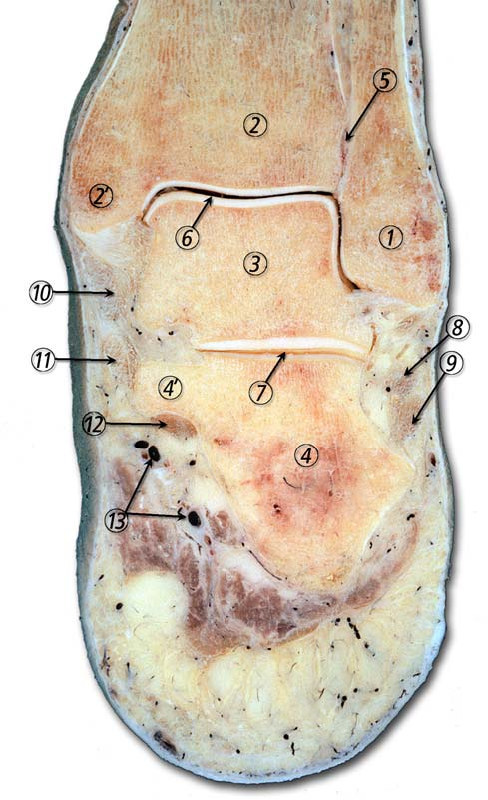 Figure 1 from Ankle anatomy for the arthroscopist. Part I: The ...