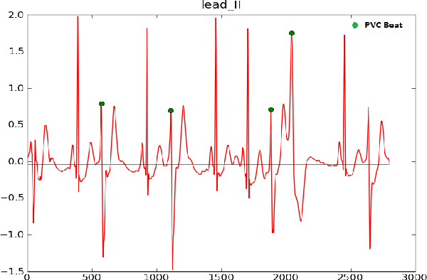 Figure 1 from Cardiac Arrhythmia Detection By ECG Feature