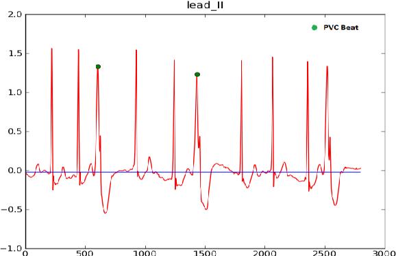 Figure 2 from Cardiac Arrhythmia Detection By ECG Feature