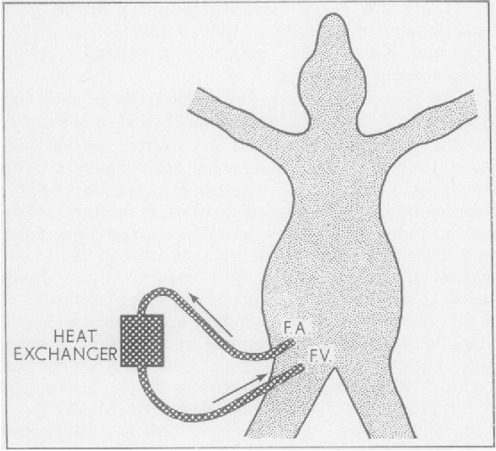 Figure 1 From Effect Of Hypothermia On Lung Compliance Semantic