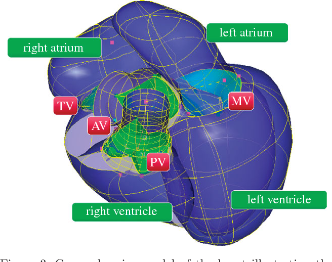 Patient-specific modelling of whole heart anatomy, dynamics and ...