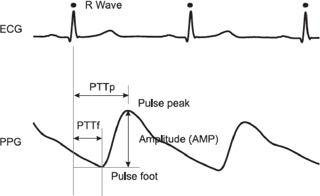 Figure 3 19 from Wireless graphene-based electrocardiogram