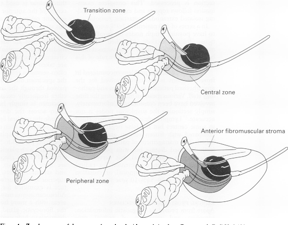 Figure 1 From Leaders Acp Broadsheet No 146 August 1995 Macroscopic