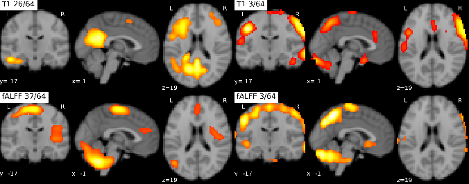 Figure 3 for On self-supervised multi-modal representation learning: An application to Alzheimer's disease