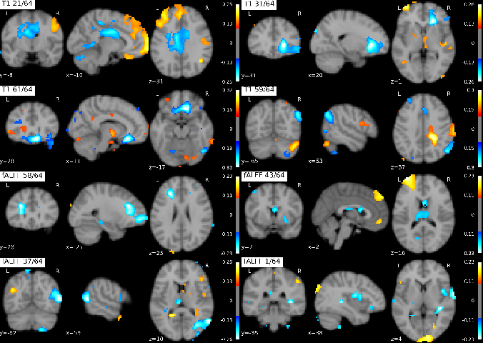 Figure 4 for On self-supervised multi-modal representation learning: An application to Alzheimer's disease