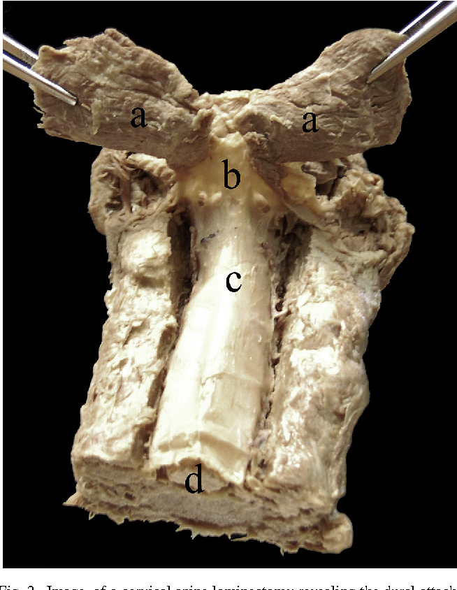 Fig. 2. Image of a cervical spine laminectomy revealing the dural attachment between the rectus capitis posterior major (RCPma) muscles and the cervical dura mater. Rectus capitis posterior major (a), attachment between the cervical dura mater and the RCPma (b), dura mater of the spinal cord (c), and spinal cord (d) at the level of the fifth cervical vertebrae.