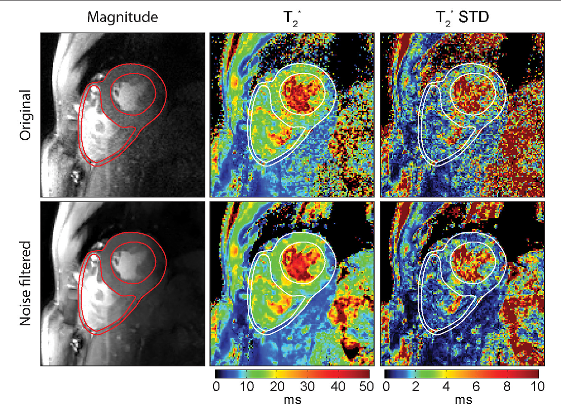 Figure 10 from Myocardial T2* Mapping with Ultrahigh Field