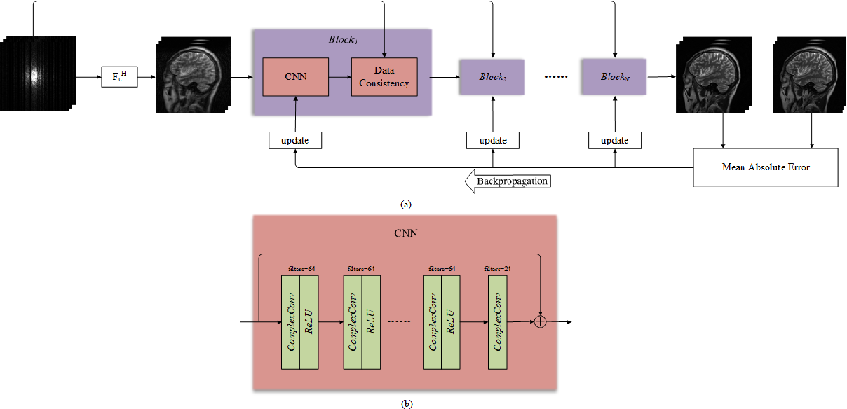 Figure 1 for DeepcomplexMRI: Exploiting deep residual network for fast parallel MR imaging with complex convolution