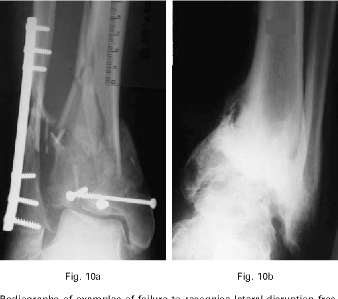 Anatomy Of Pilon Fractures Of The Distal Tibia Semantic Scholar