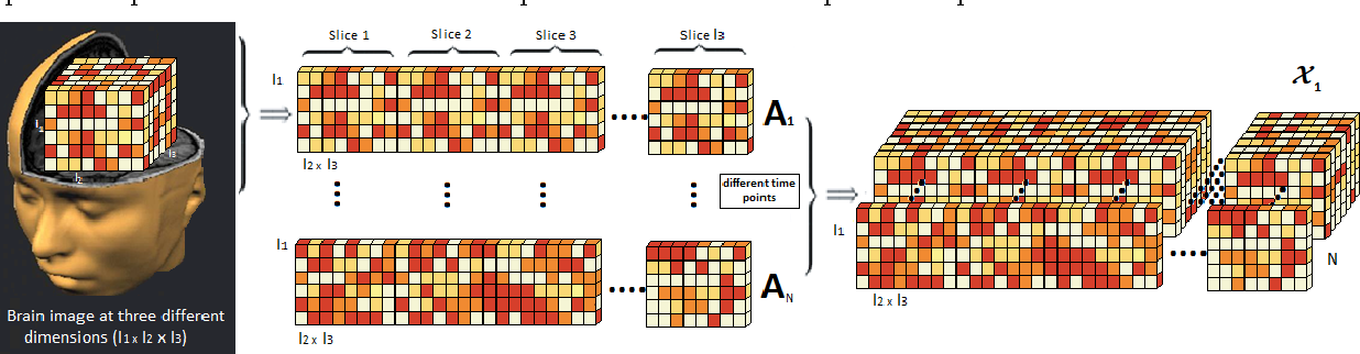 Figure 3 for Higher-Order Block Term Decomposition for Spatially Folded fMRI Data