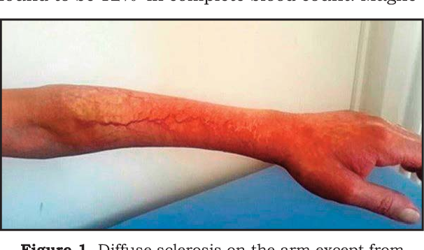 Figure 1 From Eosinophilic Fasciitis A Case Report And Review Of