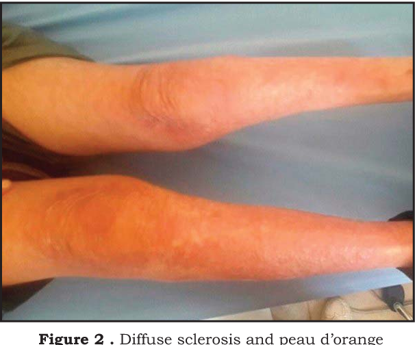 Figure 2 From Eosinophilic Fasciitis A Case Report And Review Of