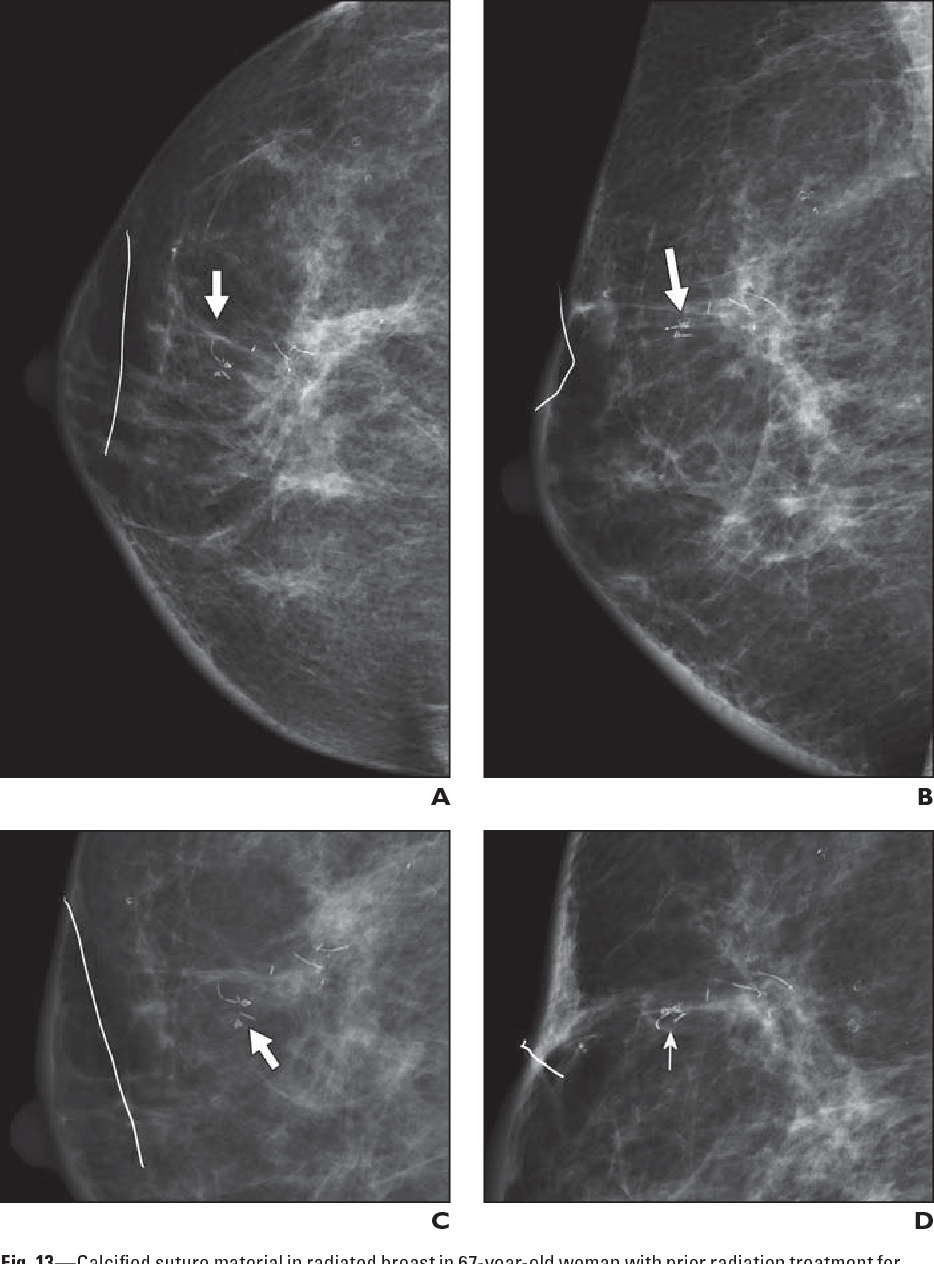 Calcifications in right breast