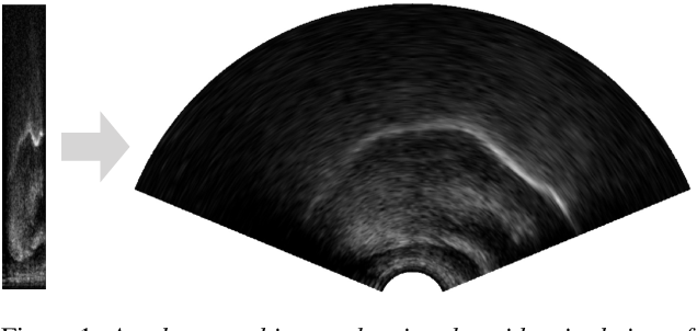Figure 2 for UltraSuite: A Repository of Ultrasound and Acoustic Data from Child Speech Therapy Sessions