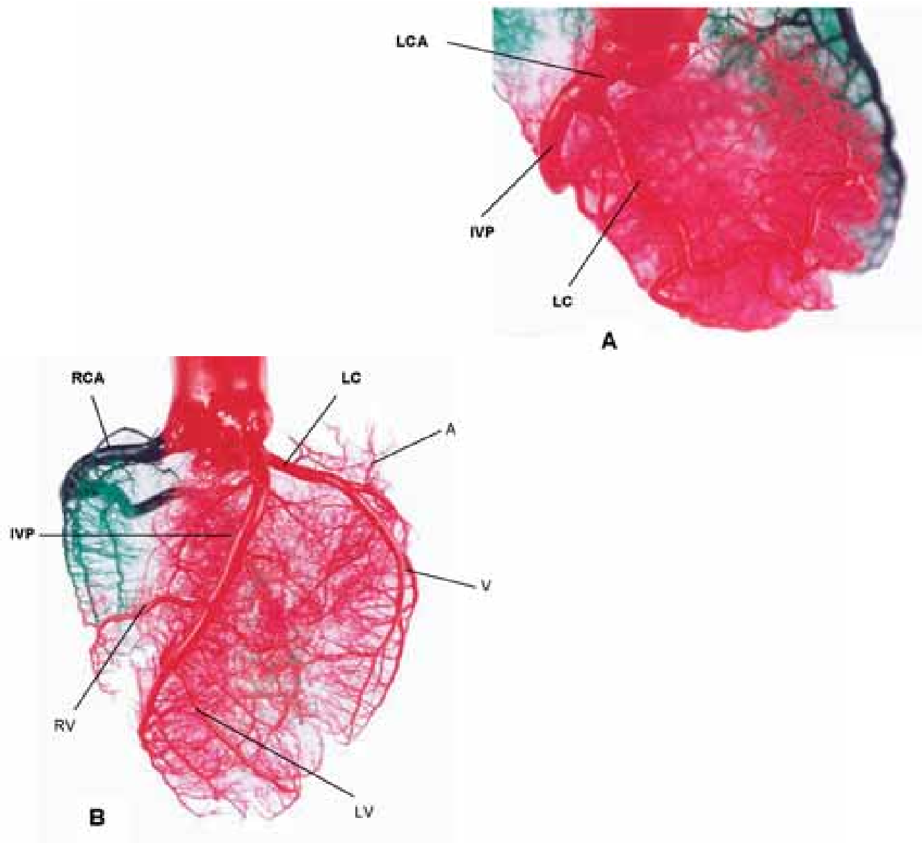 The coronary circulation of the pig heart : comparison with the ...