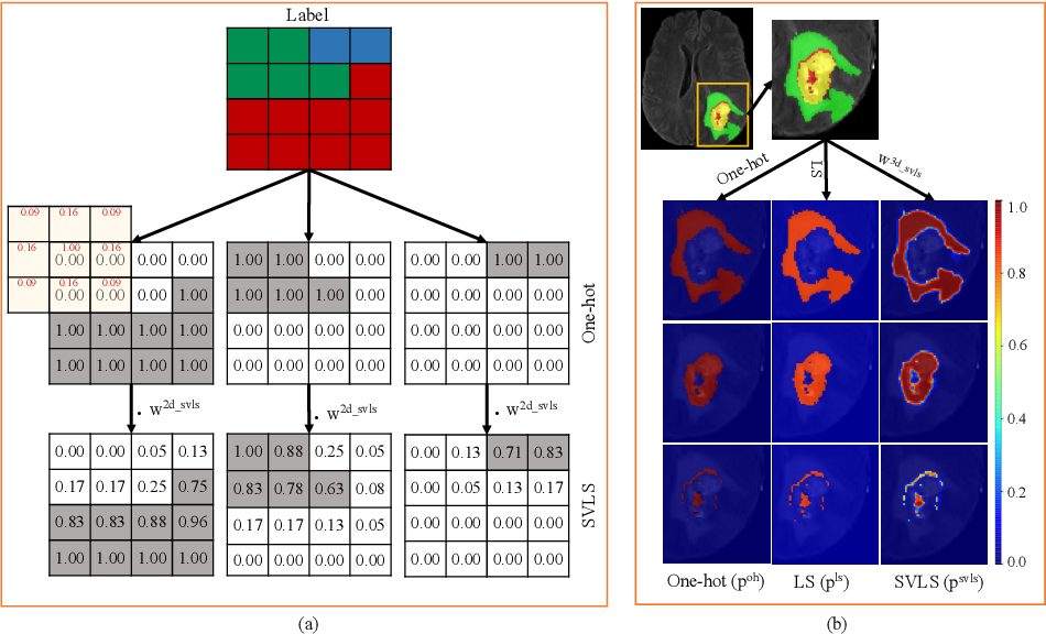 Figure 1 for Spatially Varying Label Smoothing: Capturing Uncertainty from Expert Annotations