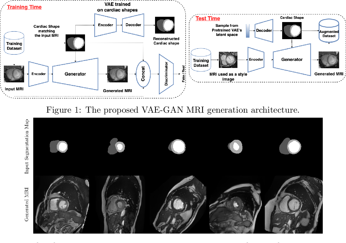 Figure 1 for On the effectiveness of GAN generated cardiac MRIs for segmentation
