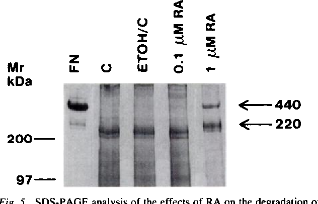 Fig. 5 SDS-PAGE analysis of the effects of RA on the degradation of fibronectin (FP'T) by SF-CM from DU-145 cells. Two and one-half p.g fibronectin were used in each sample. Samples were run on a 4-15% gradient gel. Left, molecular weight markers. Lane FN, fibronectin alone. Fibronectin bands at M, 440,000 and 220,000 are shown. Lane C, fibronectin was mixed with CM from untreated control cultures. Lane ETOHIC, same as Lane C except that CM from ethanol-treated cultures was used. Lane 0.1 pM FM, fibronectin was mixed with CM from cells treated with 0.1 p.M RA. Lane I pM RA, fibronectin was mixed with CM from cells treated with 1.0 p.M RA. kDa, kilodalton.