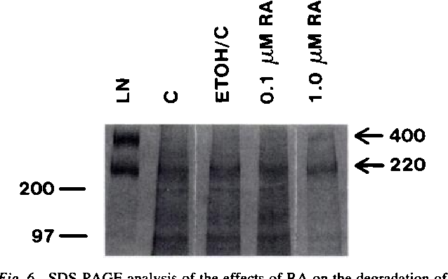 """Fig. 6 SDS-PAGE analysis of the effects of RA on the degradation of laminin (L4""""J) by CM from DU-145 cells. Two and one-half .g laminin were used in each sample. Samples were run on a 4-15% gradient gel. Left, molecular weight markers. Lane LN, laminin alone. Laminin bands at Mr 400,000 and 220,000 are shown. Lane C, laminin was mixed with CM from untreated control cultures. Lane ETOHIC, same as Lane C except that CM from ethanol-treated cultures was used. Lane 0. 1 p.w RA, laminin was mixed with CM from cells treated with 0.1 p.M RA. Lane 1.0 RA, laminin was mixed with CM from cells treated with 1.0 LM RA. kDa, kilodalton."""