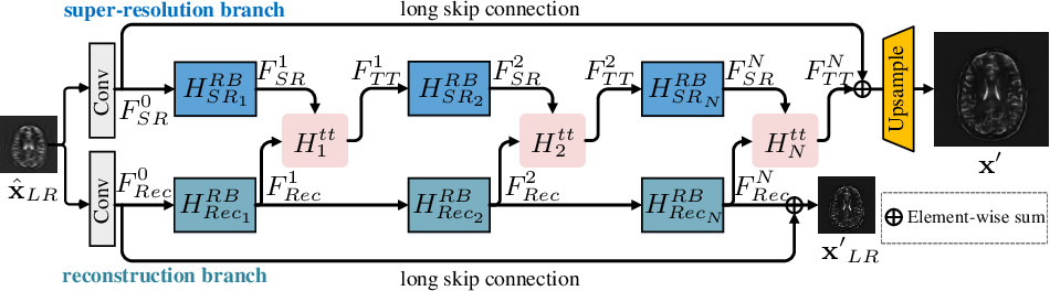 Figure 1 for Task Transformer Network for Joint MRI Reconstruction and Super-Resolution