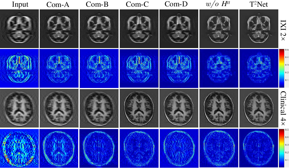 Figure 4 for Task Transformer Network for Joint MRI Reconstruction and Super-Resolution