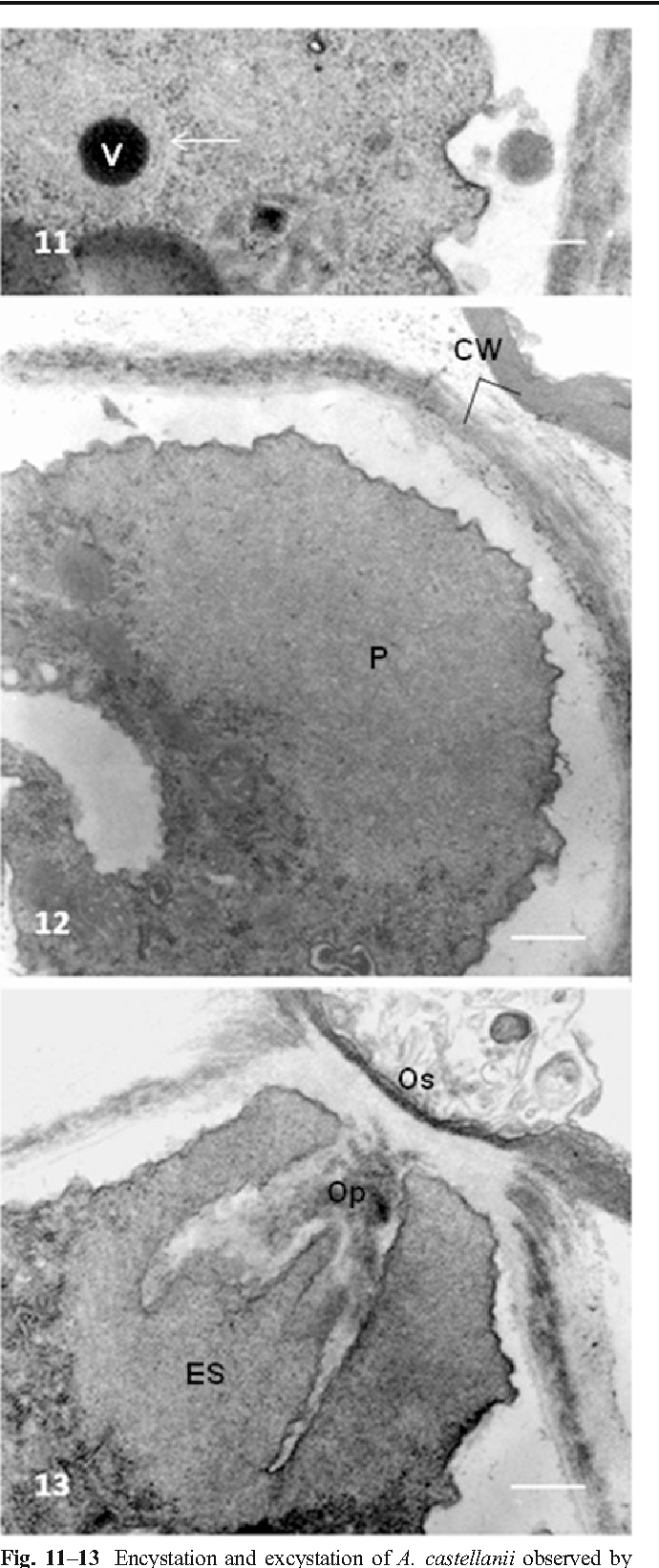 Figure 11–13 from Acanthamoeba castellanii cysts: new