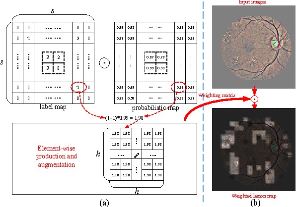 Figure 3 for Lesion detection and Grading of Diabetic Retinopathy via Two-stages Deep Convolutional Neural Networks