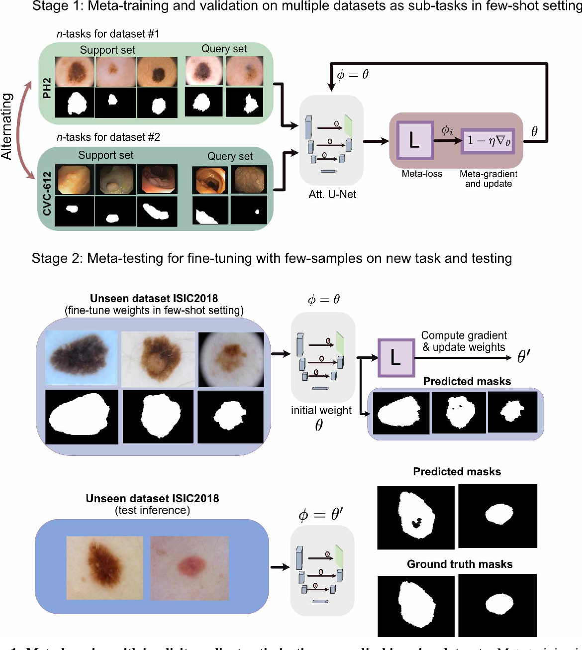 Figure 1 for Few-shot segmentation of medical images based on meta-learning with implicit gradients