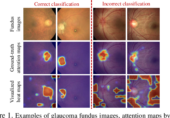 Figure 1 for Attention Based Glaucoma Detection: A Large-scale Database and CNN Model