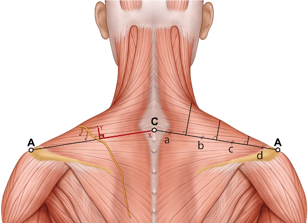 Accessory nerve distribution for aesthetic botulinum toxin ...