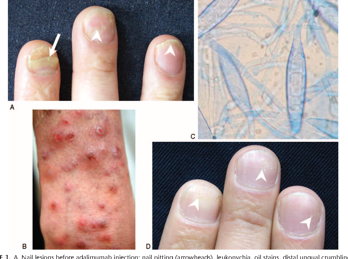 Figure 1 from A Case Report of Majocchi\'s Granuloma Associated with ...