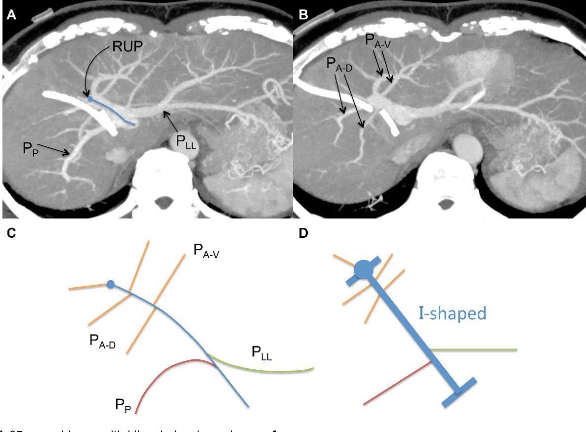 Portal vein branching order helps in the recognition of anomalous ...