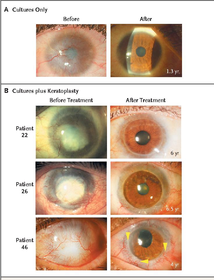 Structure of corneal epithelium - Semantic Scholar