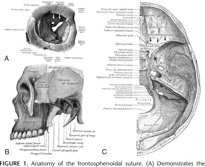 Figure 1 from Isolated Intraorbital Frontosphenoidal Synostosis ...