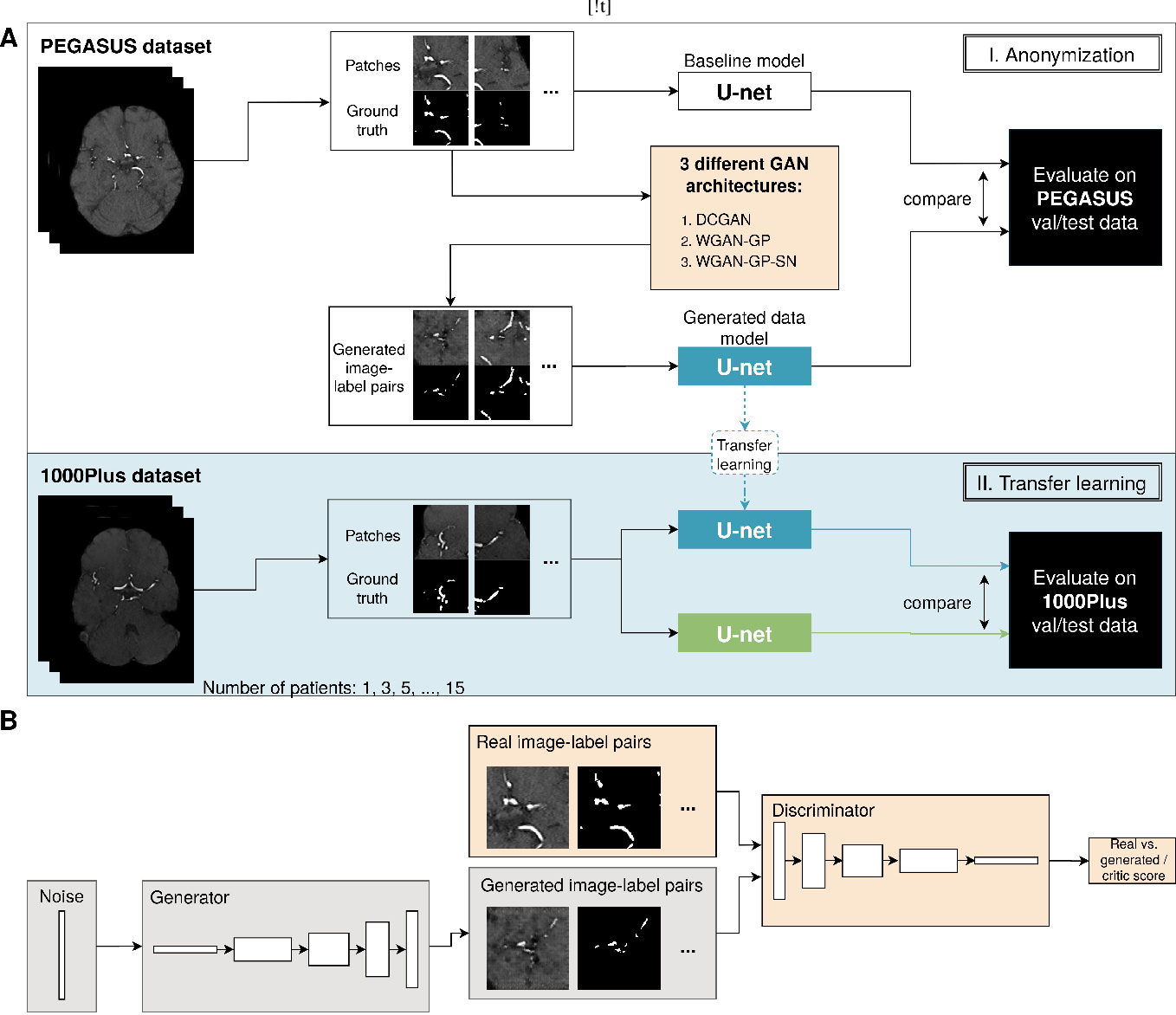 Figure 1 for Anonymization of labeled TOF-MRA images for brain vessel segmentation using generative adversarial networks