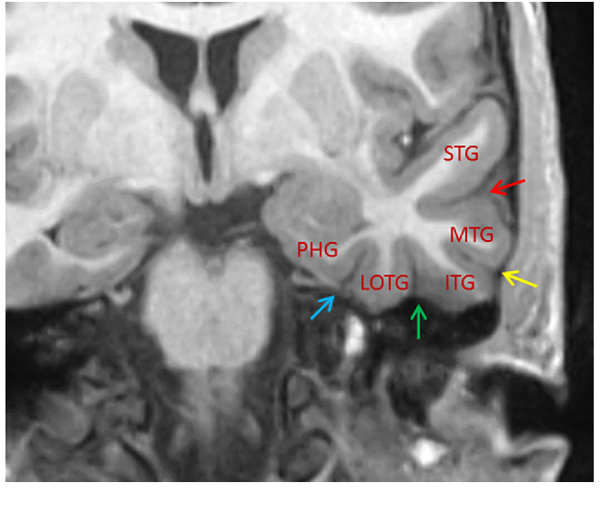 Temporal lobe anatomy: eight imaging signs to facilitate ...