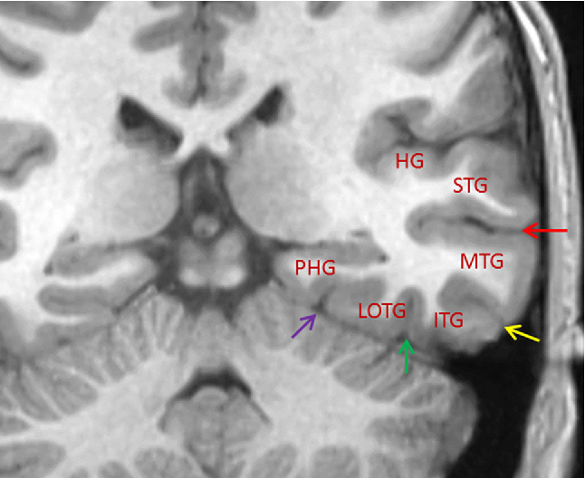 Temporal Lobe Anatomy Eight Imaging Signs To Facilitate