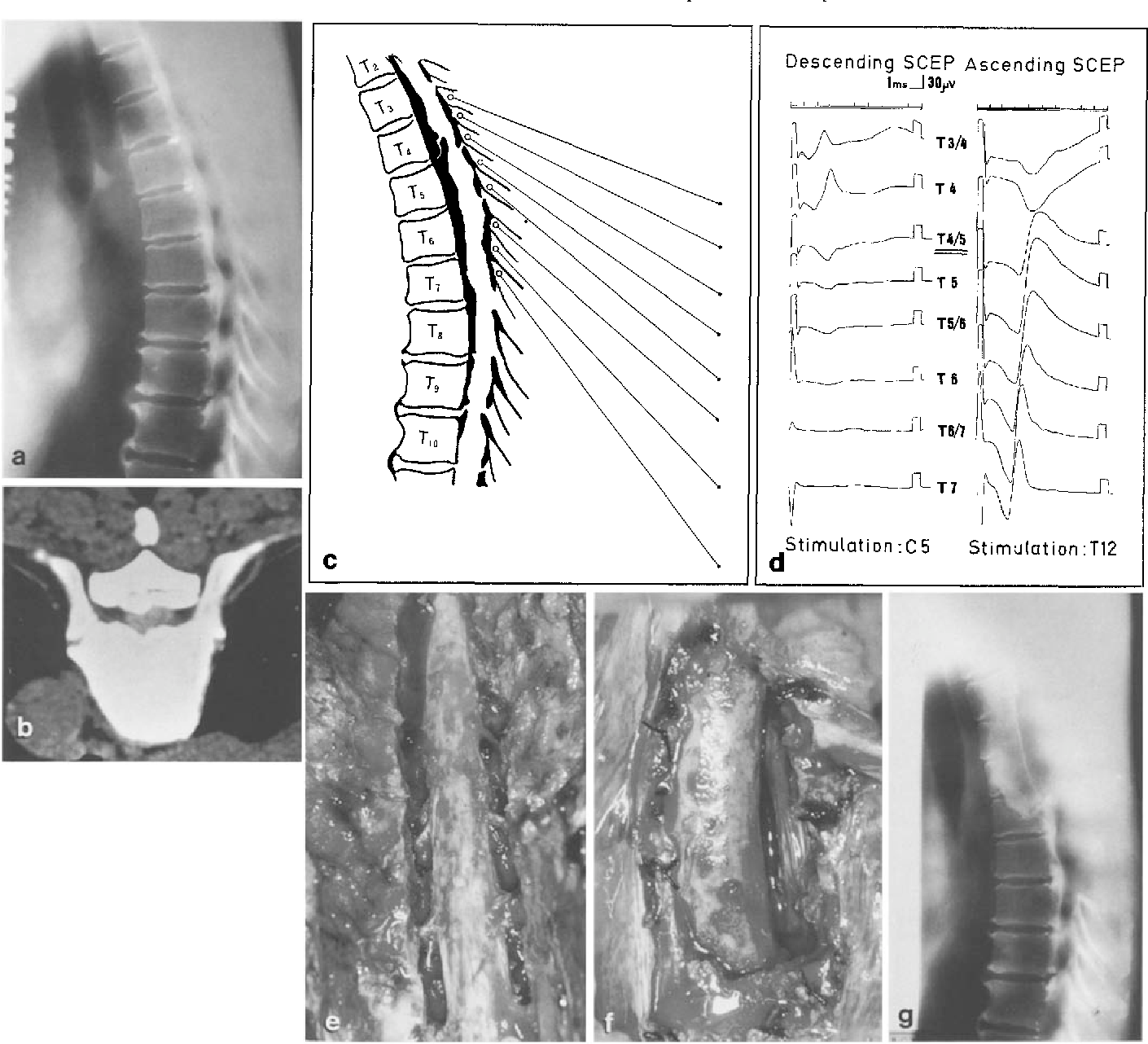 Total decompression of the spinal cord for combined ossification of ...