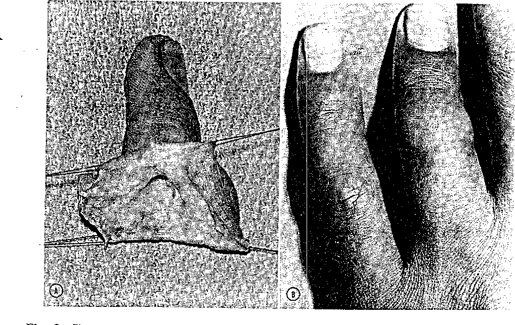 figure 3 from microvascular management of ring avulsion injuries