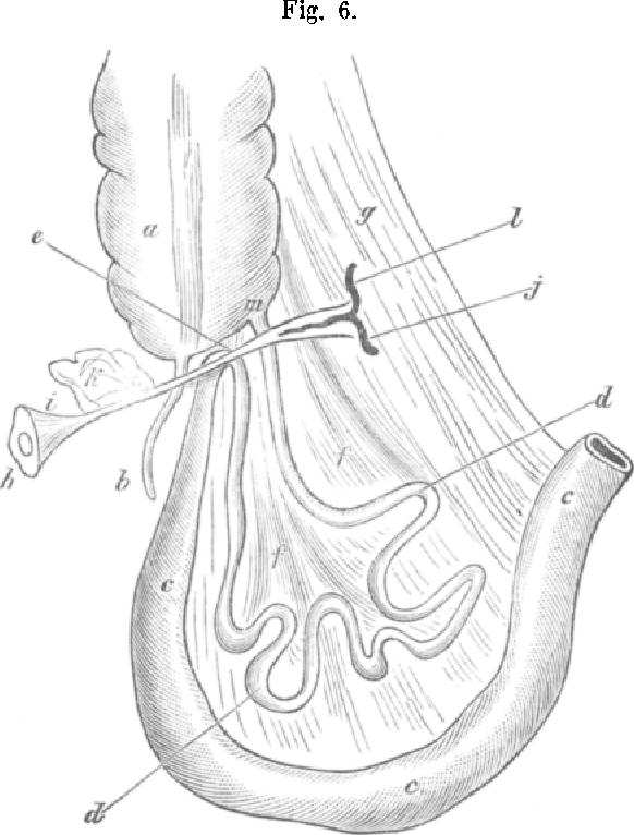 Figure 6 From Meckelsches Divertikel Und Ileus