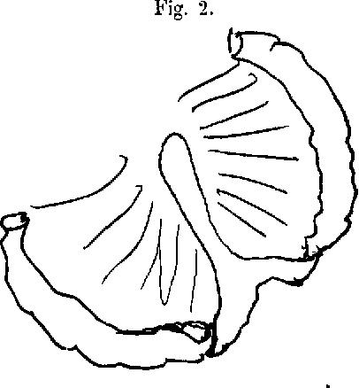 Figure 2 From Meckelsches Divertikel Und Ileus