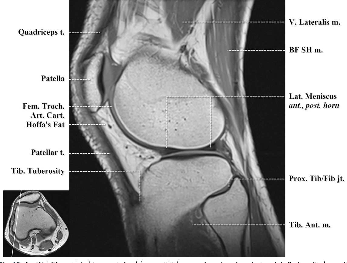 Figure 10 from Normal MR imaging anatomy of the knee. - Semantic Scholar